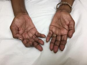 Simian Hand Neurosigns